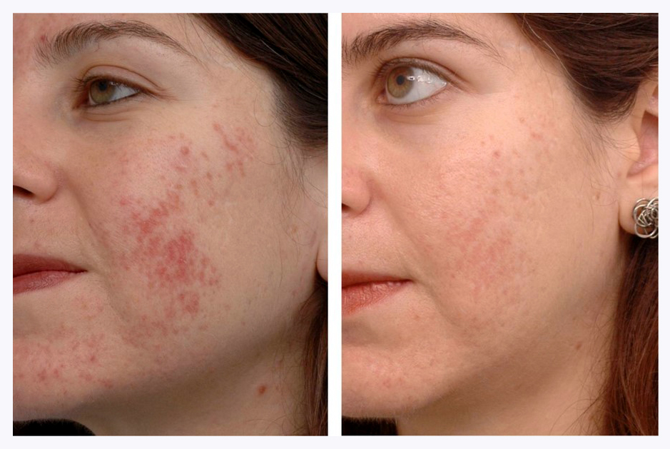 Reduce Acne with Laser Treatment at  The Hogarth Medispa in Chiswick West London
