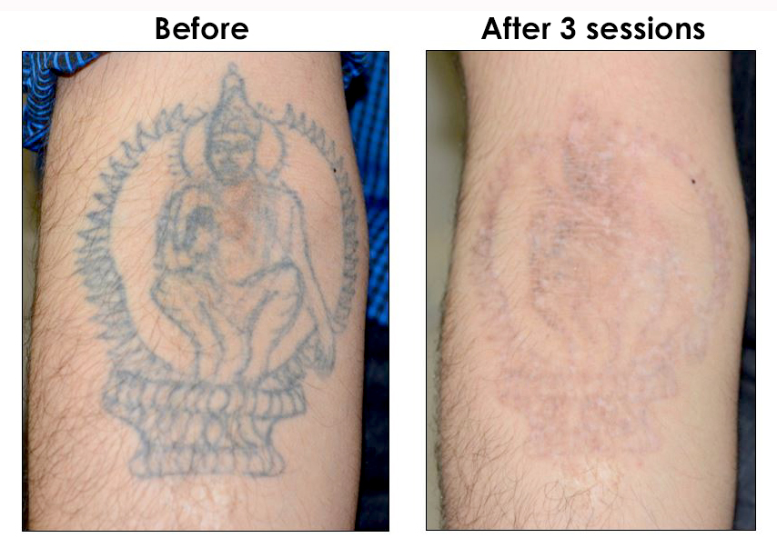 Tattoo Removal at The Hogarth Medispa in Chiswick West London