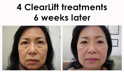Alma Harmony XL Pro Laser Treatment for Clear Lift at The Hogarth Medispa in Chiswick West London