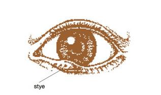 eyelash bump