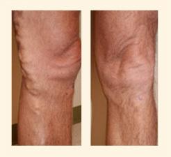 Varicose veins Clinic Image