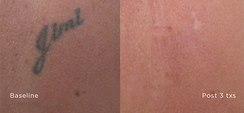 Laser Tattoo Removal Bellingham Before and After