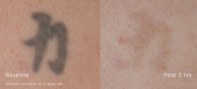 Federal Way Tattoo Removal Before and After