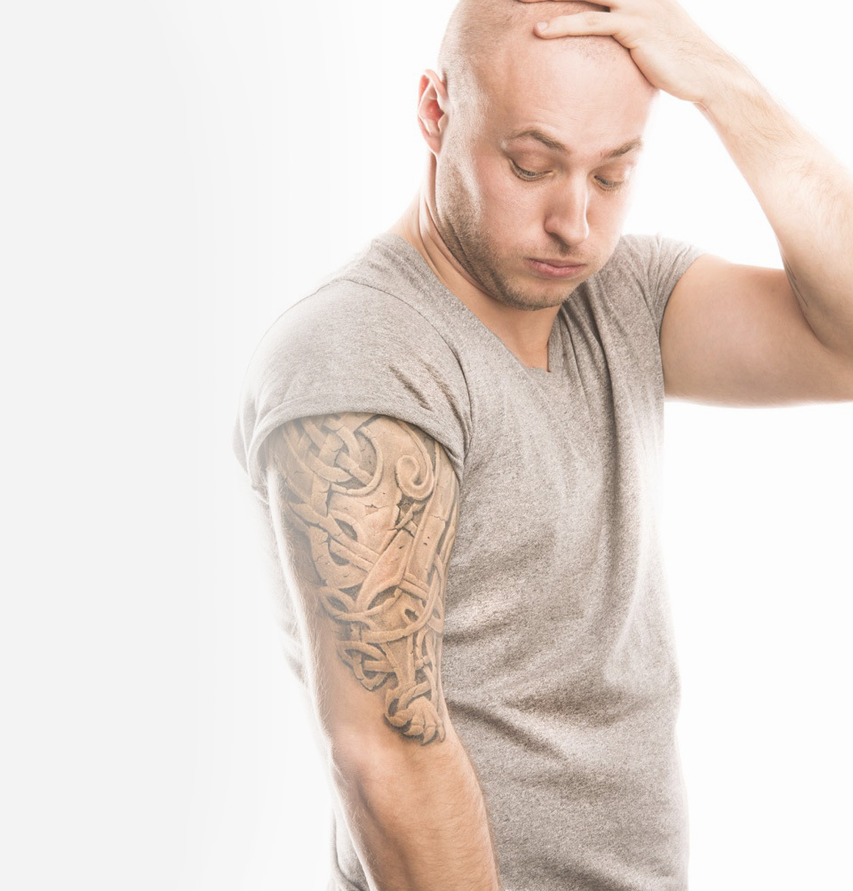 Seattle Tattoo Removal
