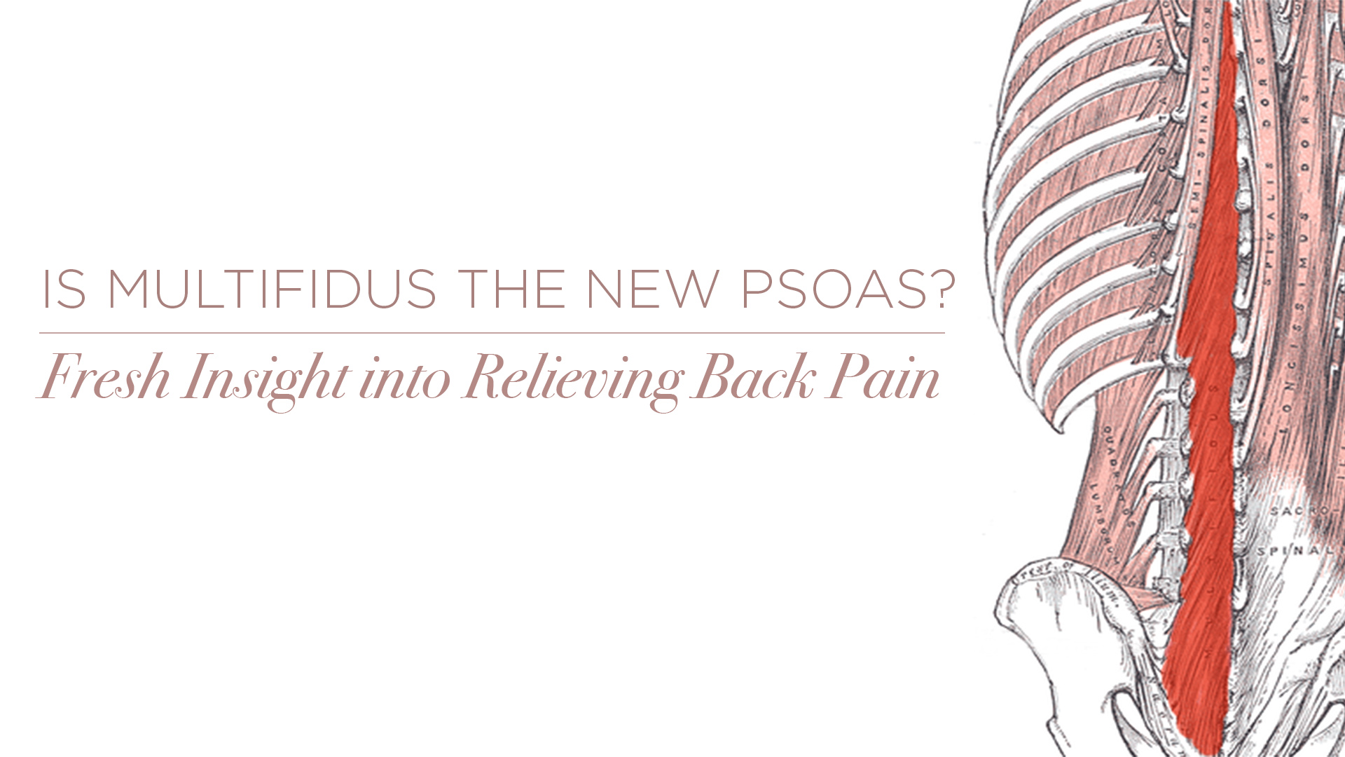 Is Multifidus the New Psoas? Fresh Insight into Relieving Back Pain