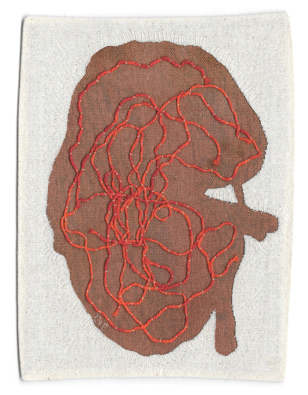 Kidney (Possessions Series)