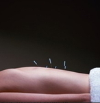 Advanced Acupuncture Center in Columbus, OH, photo #3