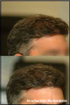 Arocha Hair Restoration in Houston, TX, photo #7