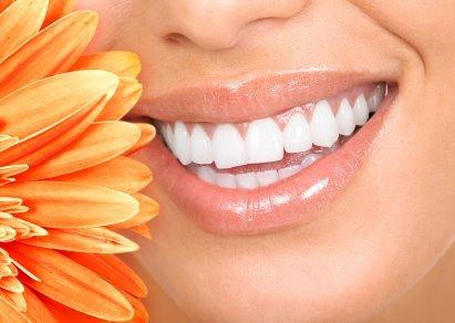 Teeth_whitening_10016