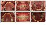 Ottley Smiles Dental Center in Navarre, FL, photo #6