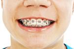 Element Dental & Orthodontics - Spring in Spring, TX, photo #7