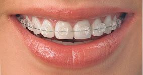 Orthodontics_in_colorado_springs__co