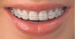 George Orthodontics in Colorado Springs, CO, photo #2