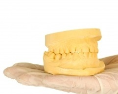 Clear_aligners_in_colorado_springs__co