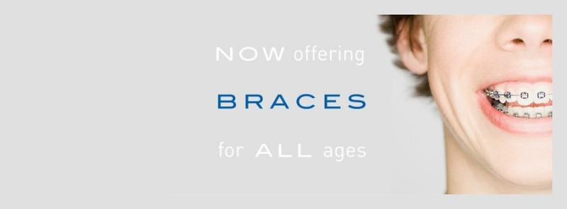 Braces_in_houston_tx