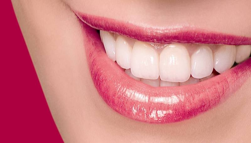 Teeth_whitening_in_houston__tx