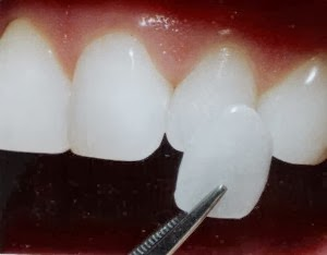 Dr. Michael P Gelbart DDS in Brewster, NY, photo #6