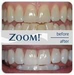 Crescent Dental & Orthodontics: Seguin in Seguin, TX, photo #13