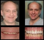 Dr. Michael P Gelbart DDS in Brewster, NY, photo #19