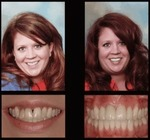 Dr. Michael P Gelbart DDS in Brewster, NY, photo #22