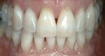 Lasting Impressions Dental Care in Colorado Springs, CO, photo #9