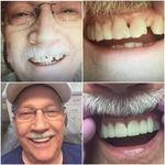 Jungmeyer & Suresh Dental Enterprises LLC in Lees Summit, MO, photo #36