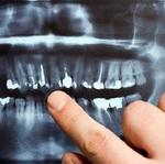 Sage Dental in La Porte, TX, photo #47