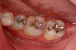 Aesthetic Dental Designs/Todd Snyder, DDS in Laguna Niguel, CA, photo #4