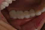Aesthetic Dental Designs/Todd Snyder, DDS in Laguna Niguel, CA, photo #7