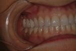 Aesthetic Dental Designs/Todd Snyder, DDS in Laguna Niguel, CA, photo #8