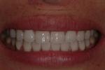 Aesthetic Dental Designs/Todd Snyder, DDS in Laguna Niguel, CA, photo #19