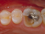 Aesthetic Dental Designs/Todd Snyder, DDS in Laguna Niguel, CA, photo #23