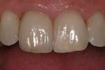 Aesthetic Dental Designs/Todd Snyder, DDS in Laguna Niguel, CA, photo #26