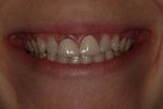 Aesthetic Dental Designs/Todd Snyder, DDS in Laguna Niguel, CA, photo #27