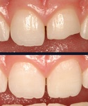 Aesthetic Smiles Dr. Wade Pilling DMD in Meridian, ID, photo #2