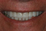 Aesthetic Smiles Dr. Wade Pilling DMD in Meridian, ID, photo #3