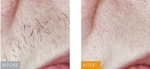 Gentle Touch Laser Hair Removal in New York, NY, photo #3