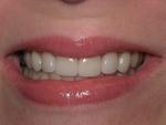 Creekview Dental in Woodbury, MN, photo #5