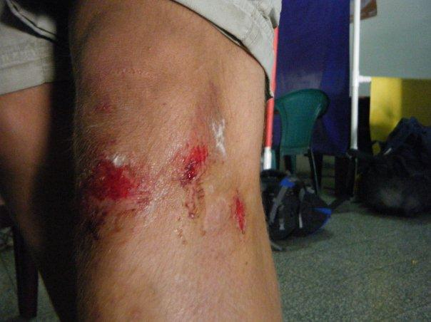 sherwins knee after scooter incident