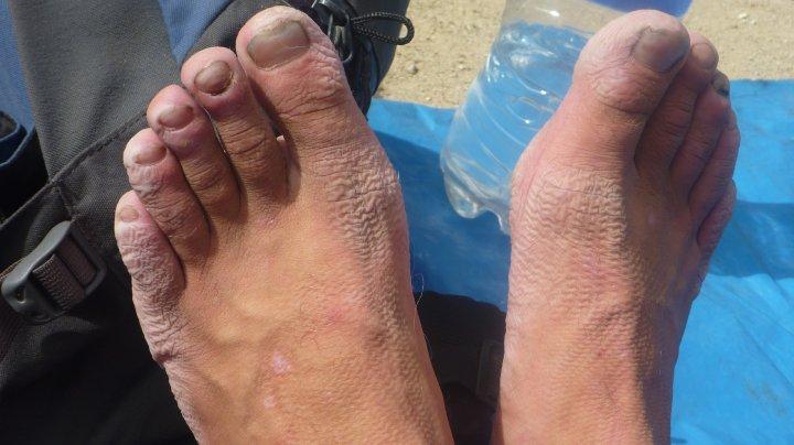 wrightys feet