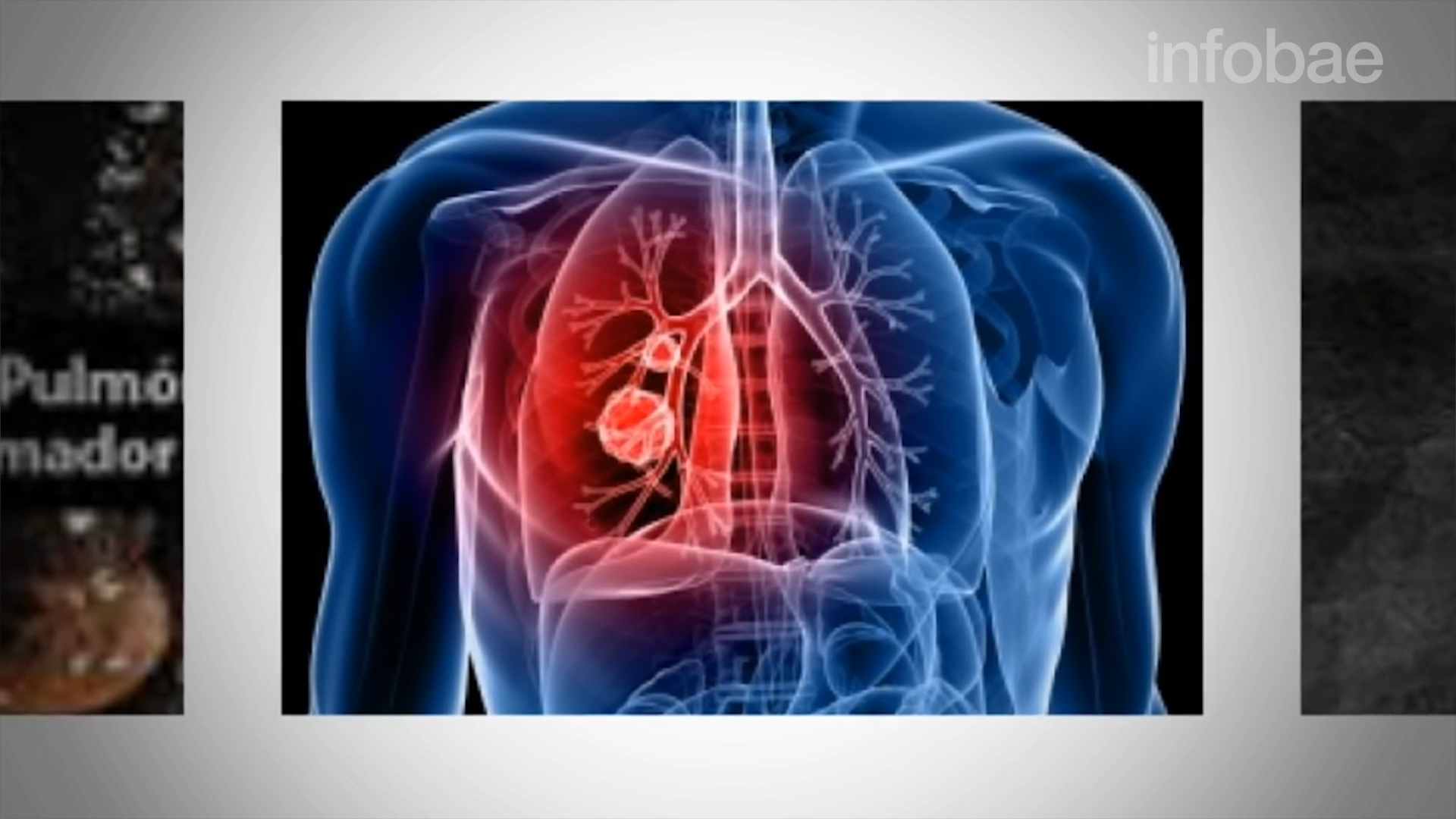 Cáncer de pulmón, el más letal en hombres