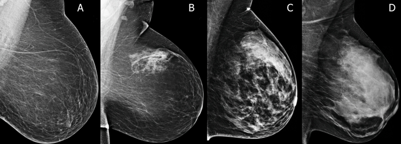 Breast Density Information - By Breastlink