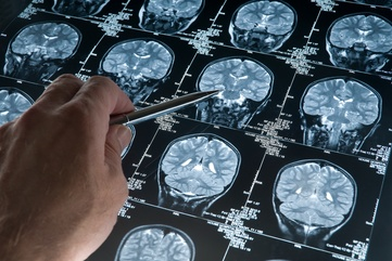 Mri alzheimers research