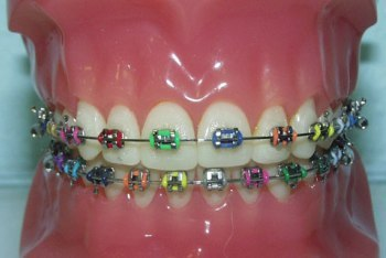 Rainbow Colored Braces
