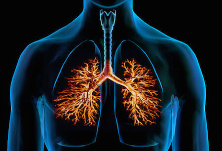 Bronchitis is an inflammation of the lungs.