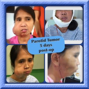 Parotid tumor