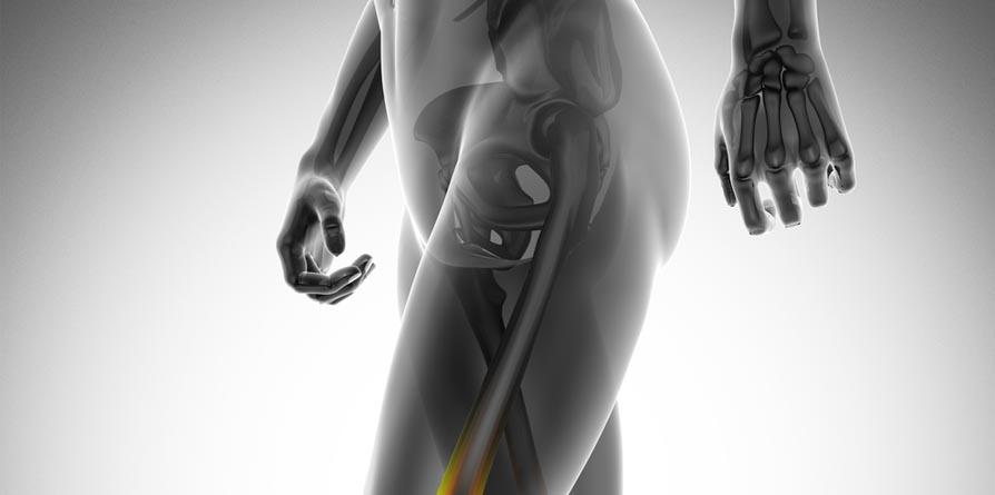 Exercícios ajudam a prevenir osteoporose e fraturas