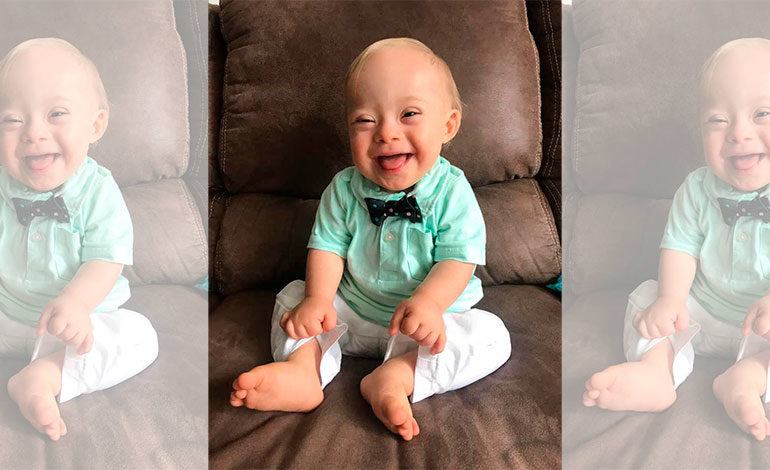 Lucas el primer niño con Síndrome de Down en ser la imagen de Gerber