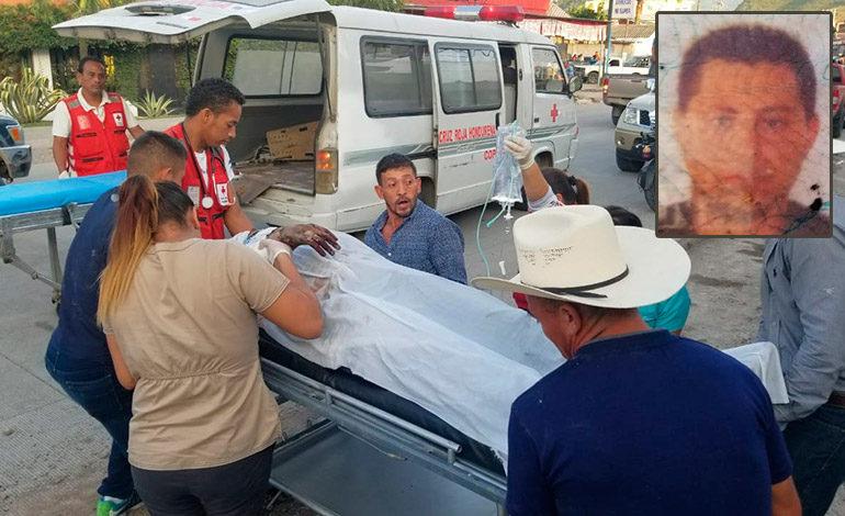 Exdetective por poco muere en explosión de cohetería