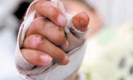 Otro niño quemado por pólvora ingresa al HEU